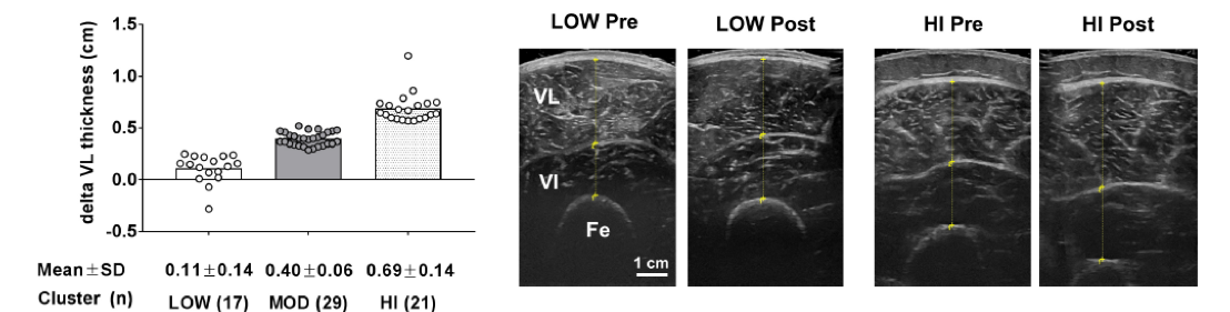 delta VL thickness Low pre/post and High pre/post